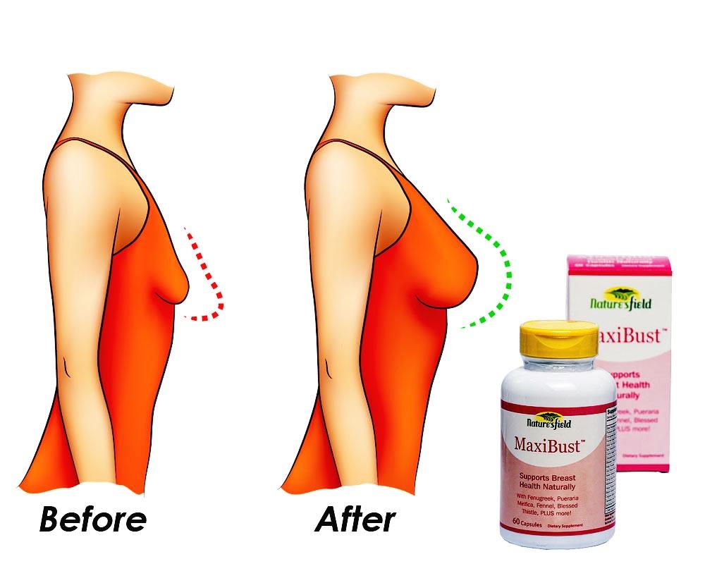 Breast Enlargement & Bust lift