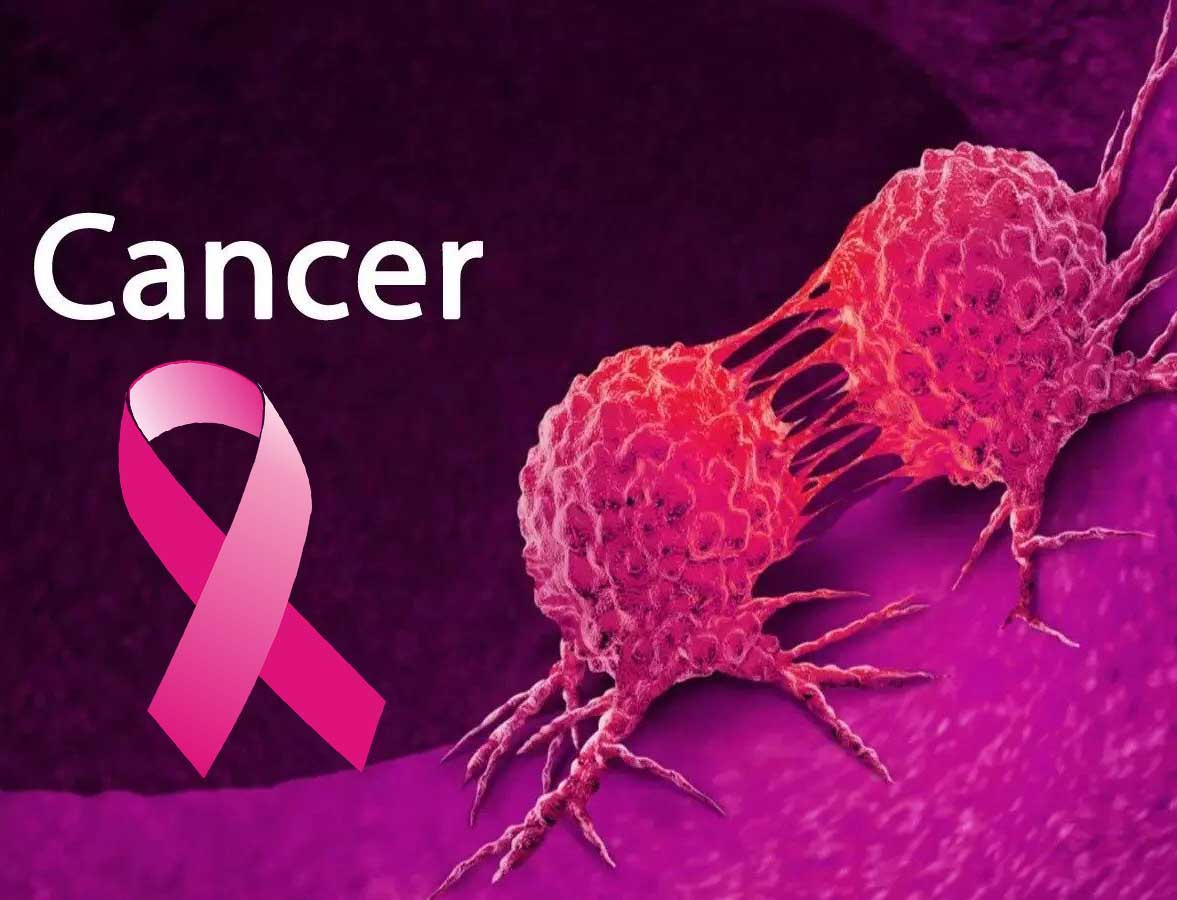What is cancer & how do you prevent the disease?